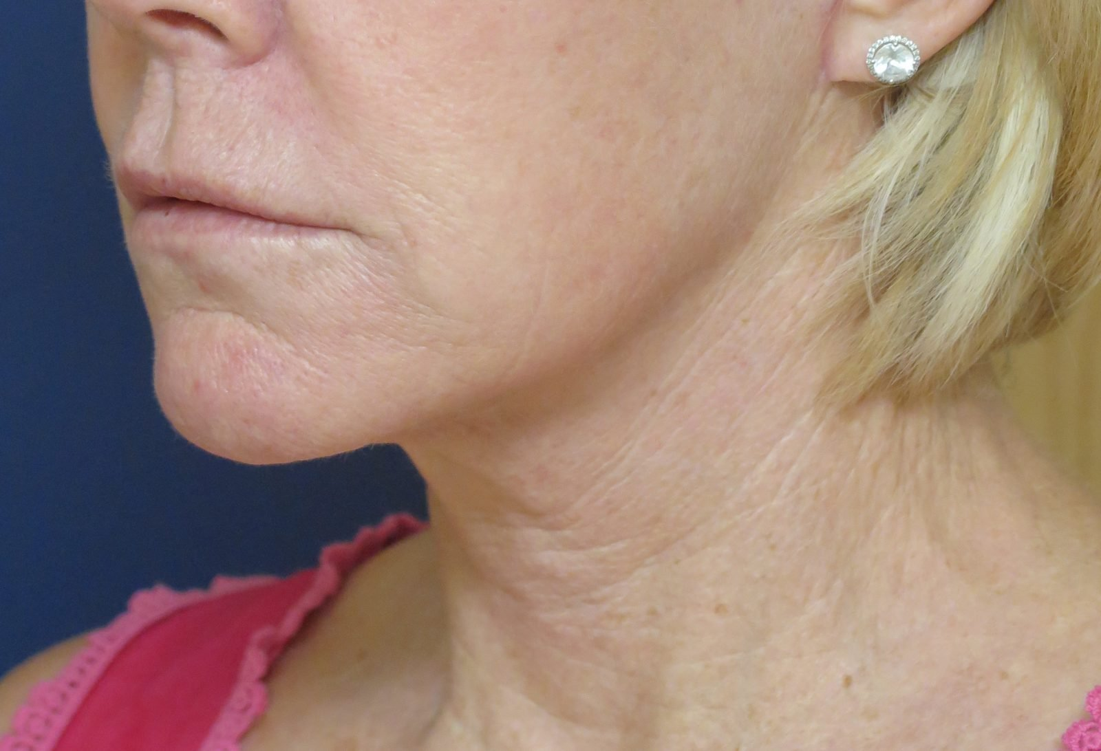 Patient picture after neck lift at Nuance Facial Plastics