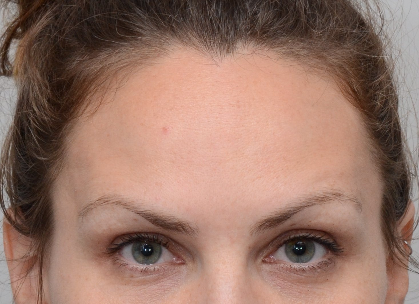 Patient picture after Botox at Nuance Facial Plastics