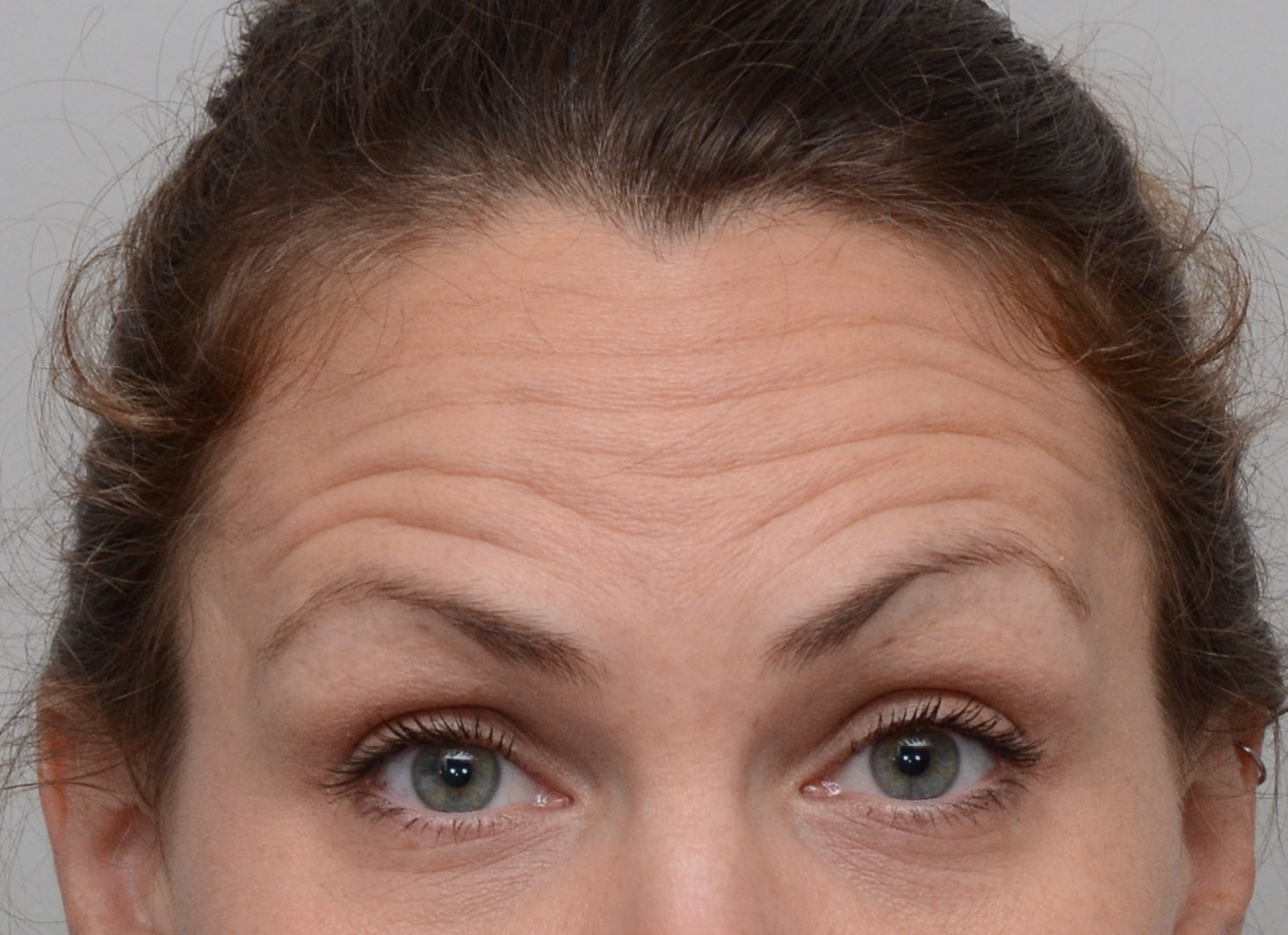 Patient picture before Botox at Nuance Facial Plastics