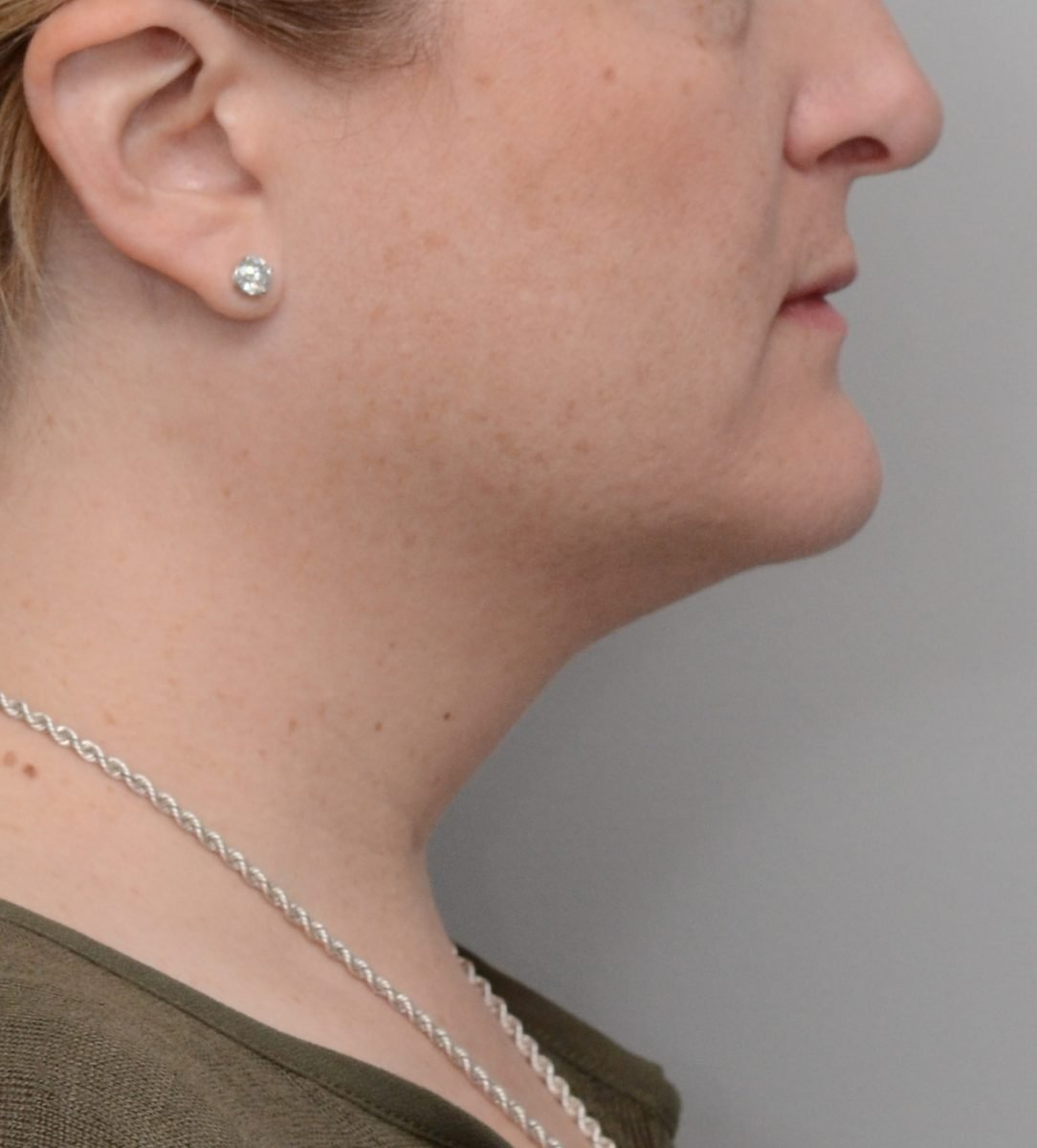 Patient picture before Kybella at Nuance Facial Plastics