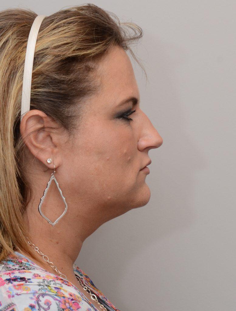 Chin Liposuction by Dr  Summit Kundaria at Nuance Facial