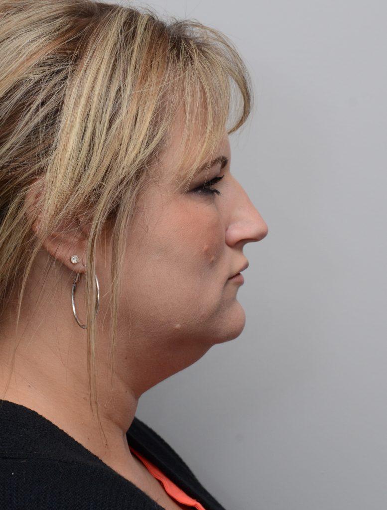 Chin Liposuction by Dr  Summit Kundaria at Nuance Facial Plastics