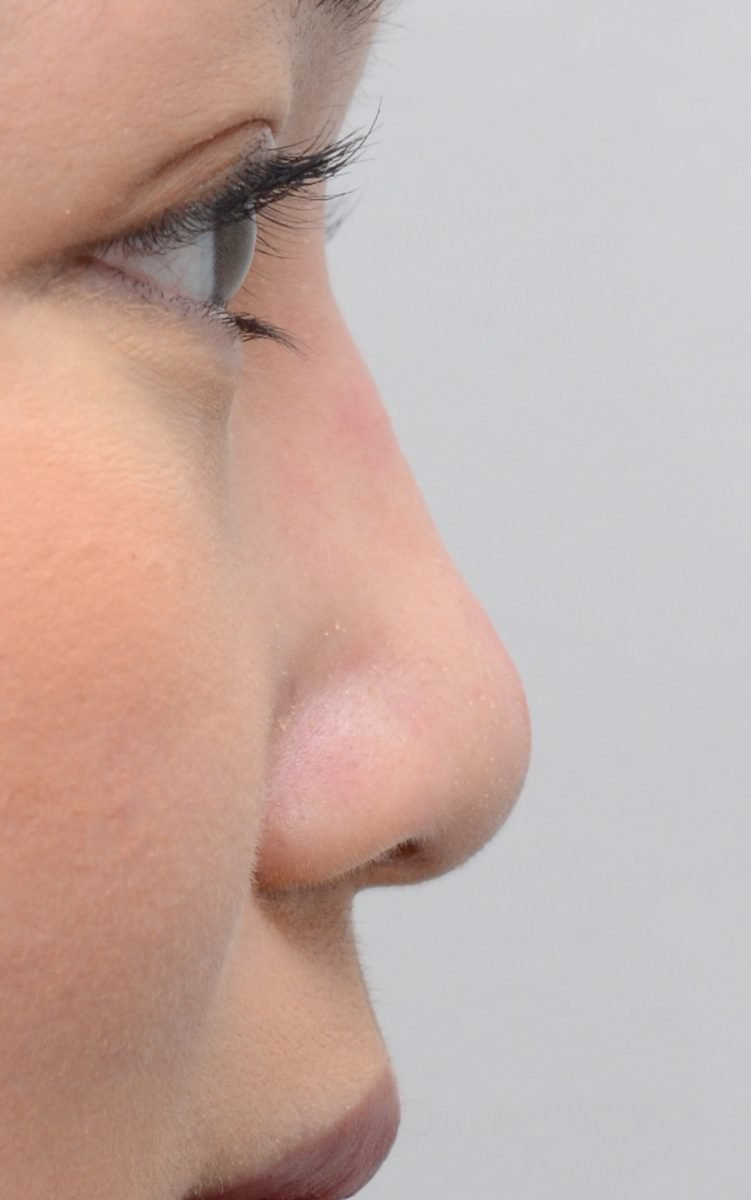 patient picture after non surgical rhinoplasty bridge
