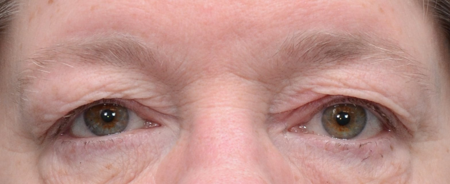 patient picture before upper eyelid lift blepharoplasty