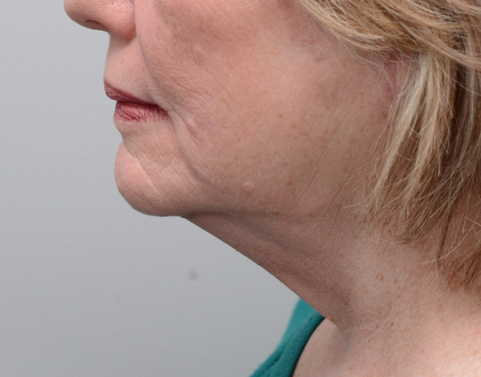Picture of patient after neck lift surgery
