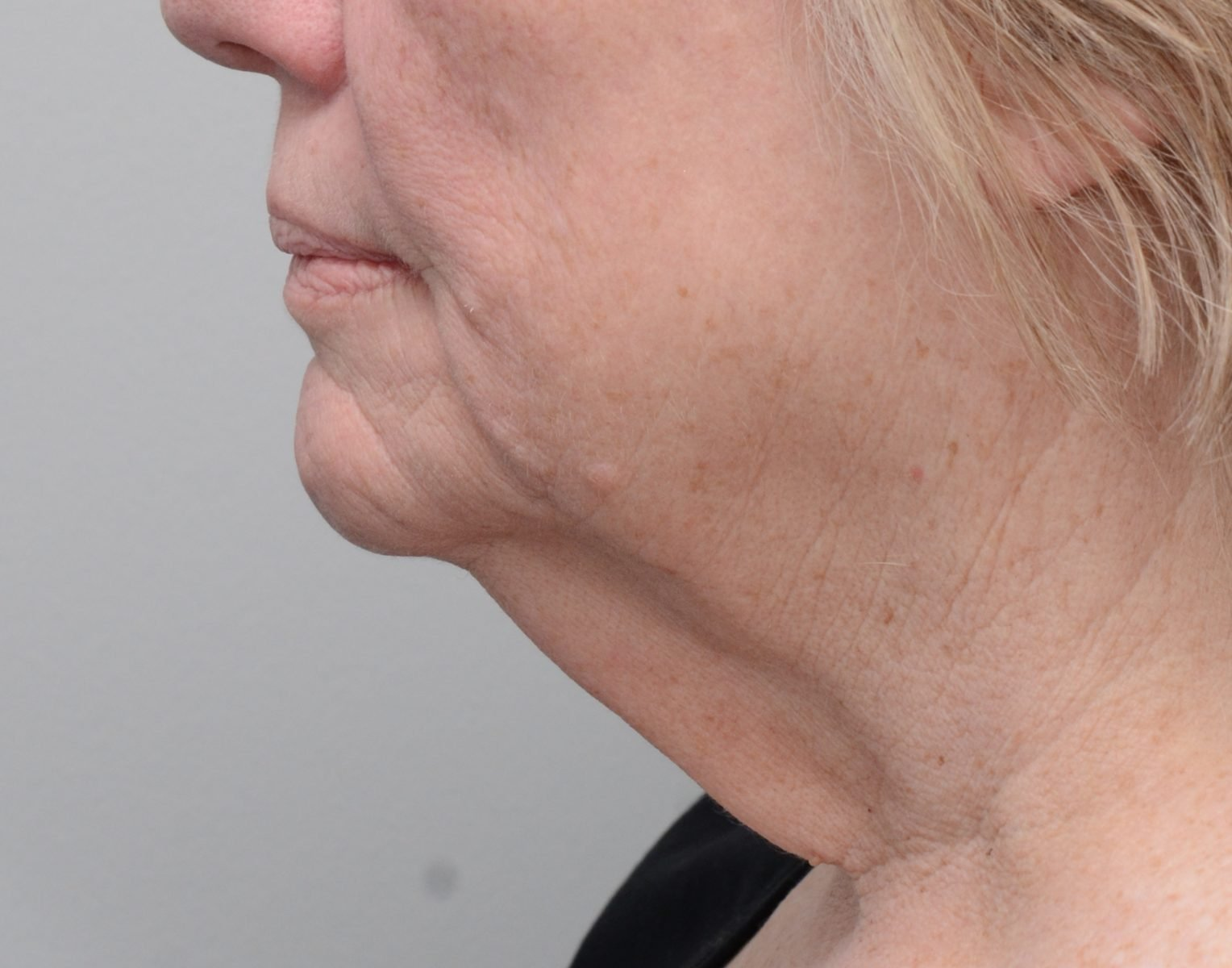 Picture of patient before neck lift surgery