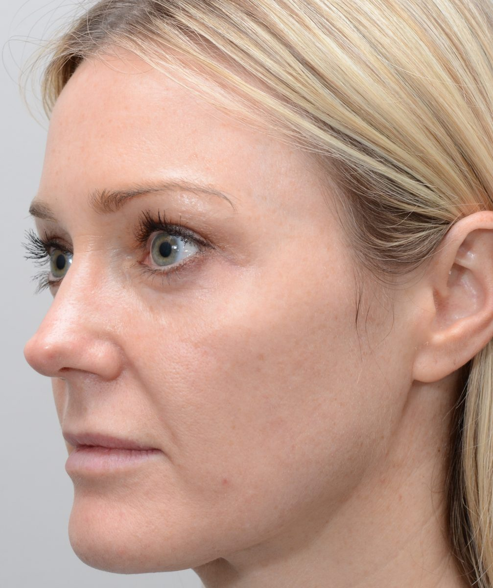 Patient picture after fractional erbium laser resurfacing for sun damaged skin and pigment
