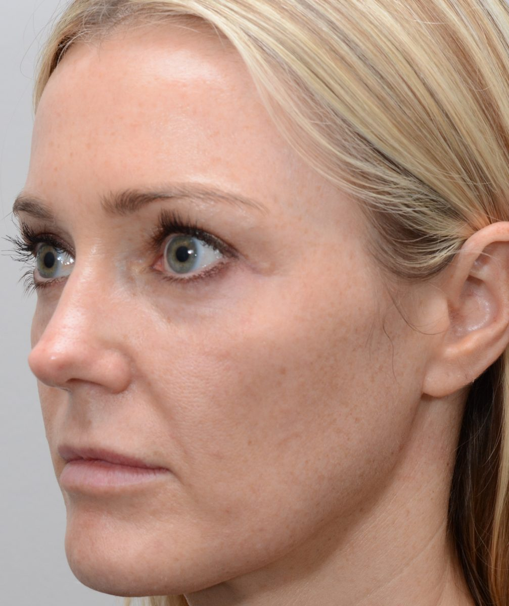 Patient picture before fractional erbium laser resurfacing for sun damaged skin and pigment