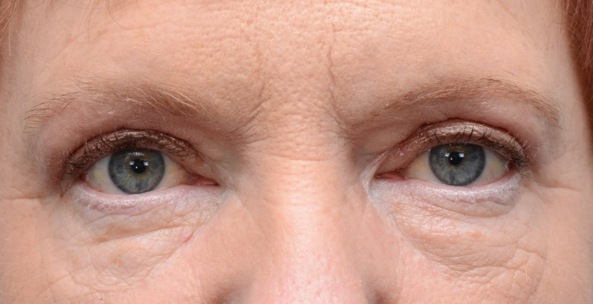 Patient picture after upper eyelid lift blepharoplasty