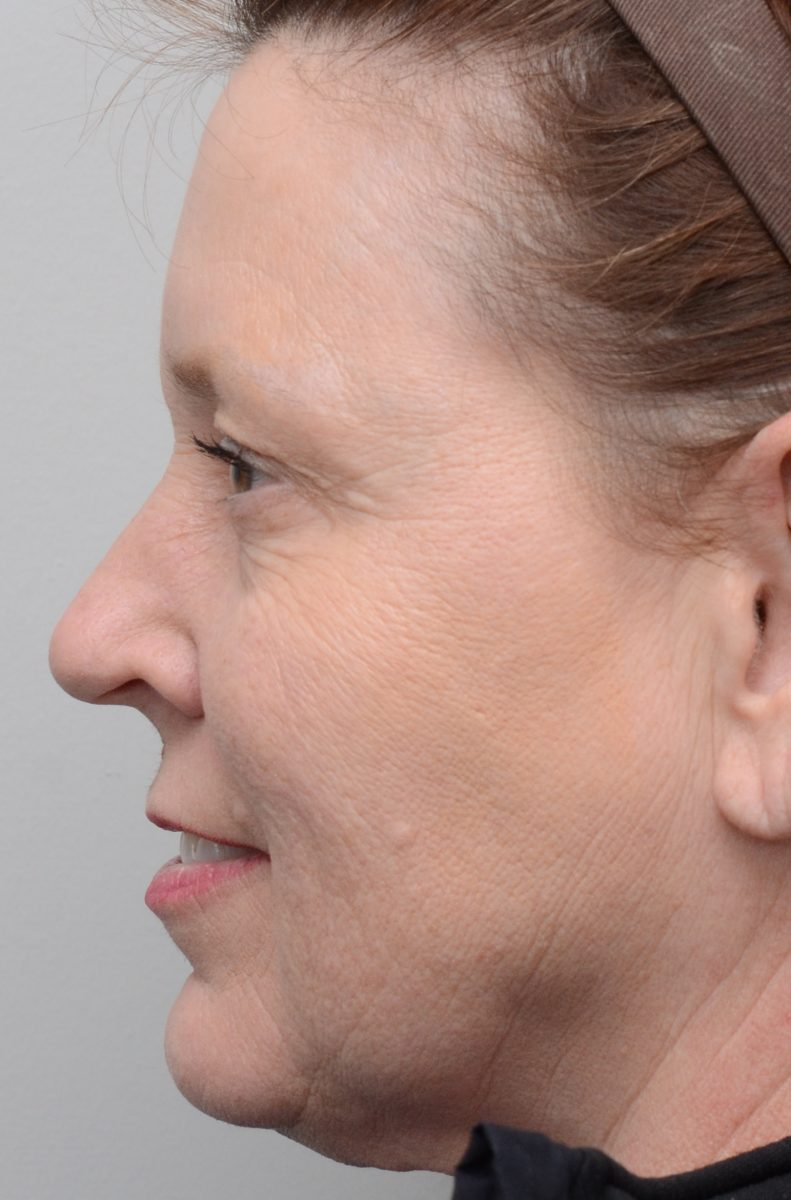Fractional Erbium Laser Resurfacing for Fine Lines and Wrinkles Before
