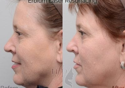Erbium Laser Resurfacing