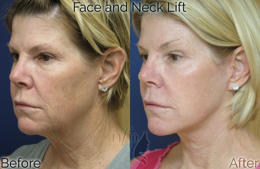 Facelift - Dr  Summit Kundaria, Nuance Facial Plastics