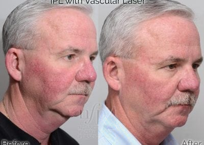 Before and After IPL vascular laser