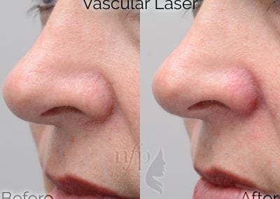 Vascular Laser for Facial Veins