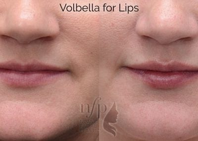before and after volbella lips