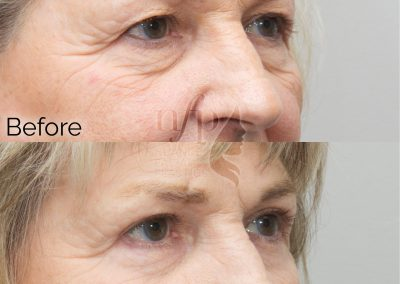 Right Oblique View of Upper and Lower Eyelid Lift