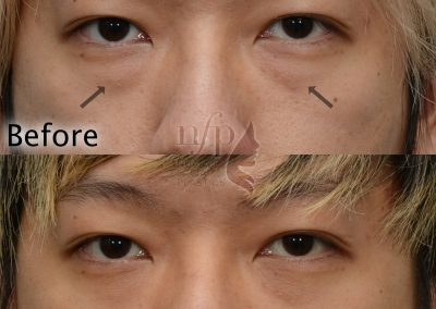 front view of scarless lower eyelid lift