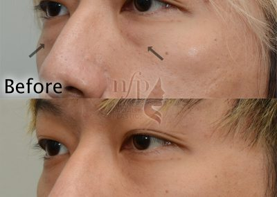 lower eyelid lift oblique view