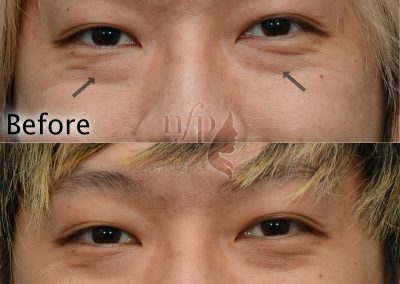 smiling view of lower eyelid fat bags