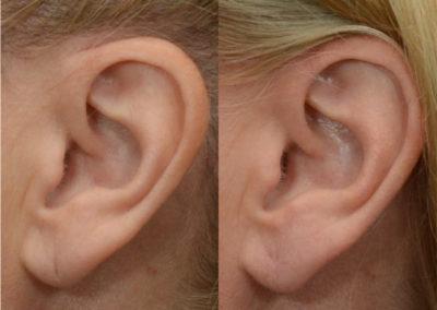 elongated earlobe repair patient
