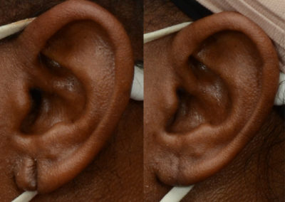 Patient before and after repair of her torn earlobe