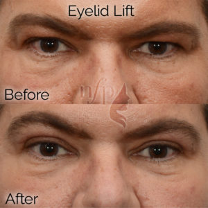 male before and after upper blepharoplasty